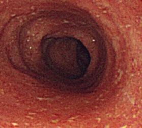 潰瘍性大腸炎の「鉛管様腸管」とは