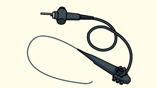 大腸内視鏡でのポリープ切除方法