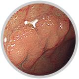 早期大腸癌(m癌)