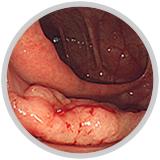 早期大腸癌(sm癌)