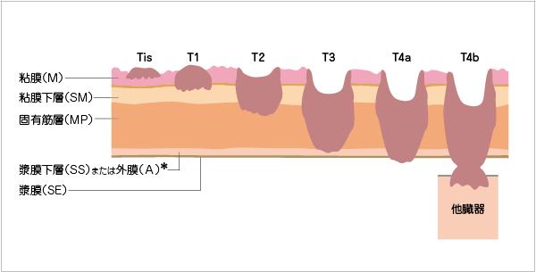 癌の深達度の図説