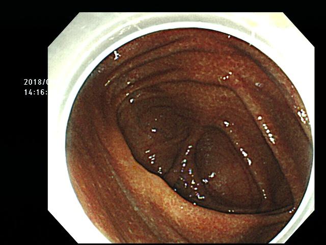 大腸メラノーシスの写真